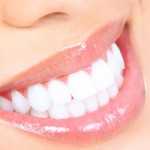 Clareamento Dental - Mitos e verdades